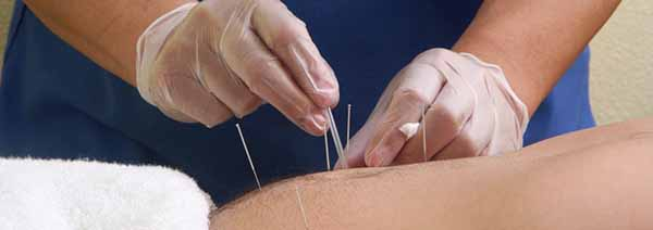Fight cancer with Acupuncture and Hypnotherapy